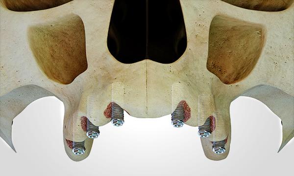 Diseño 3d implantología clínicas dentales Barcelona